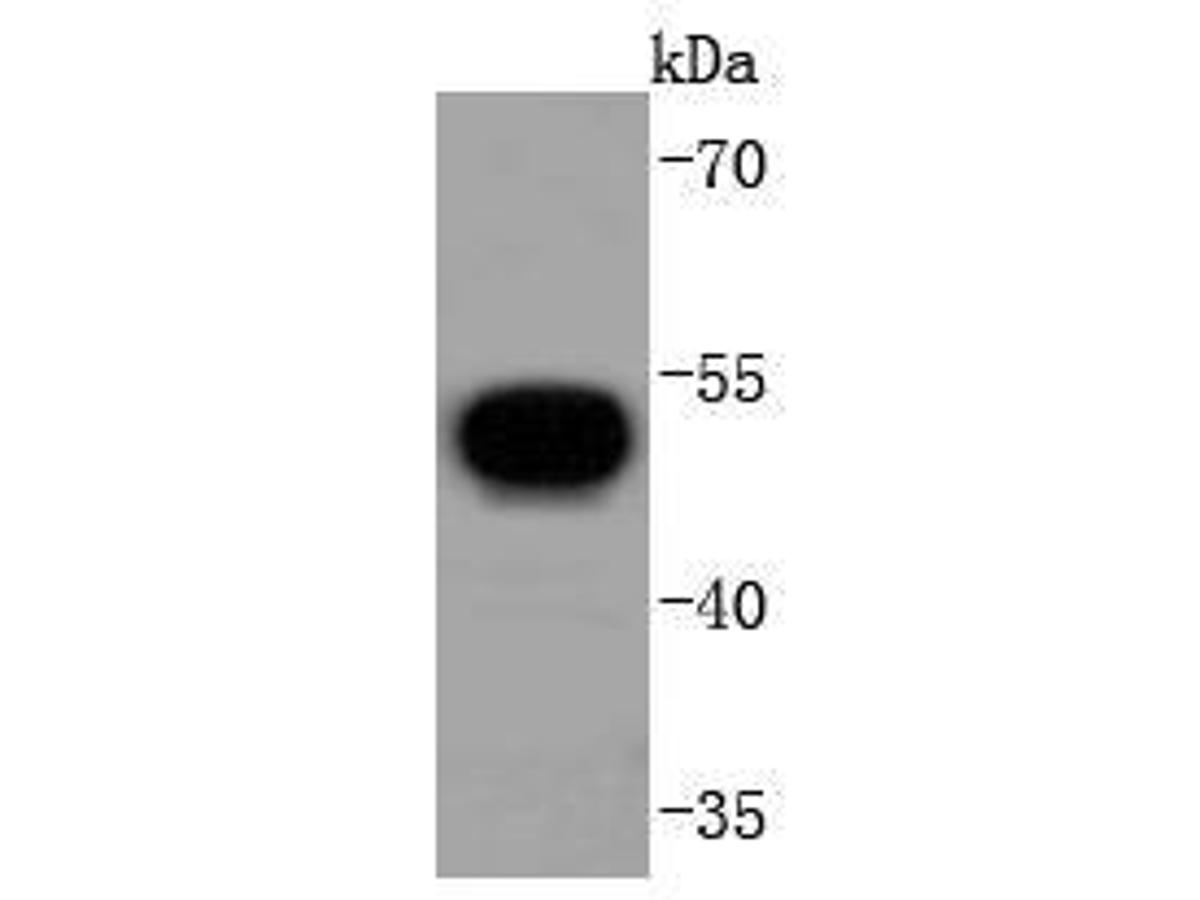 Western blot analysis of V5 tag on V5-tagged recombinant protein lysates using anti-V5 tag antibody at 1/1,000 dilution.