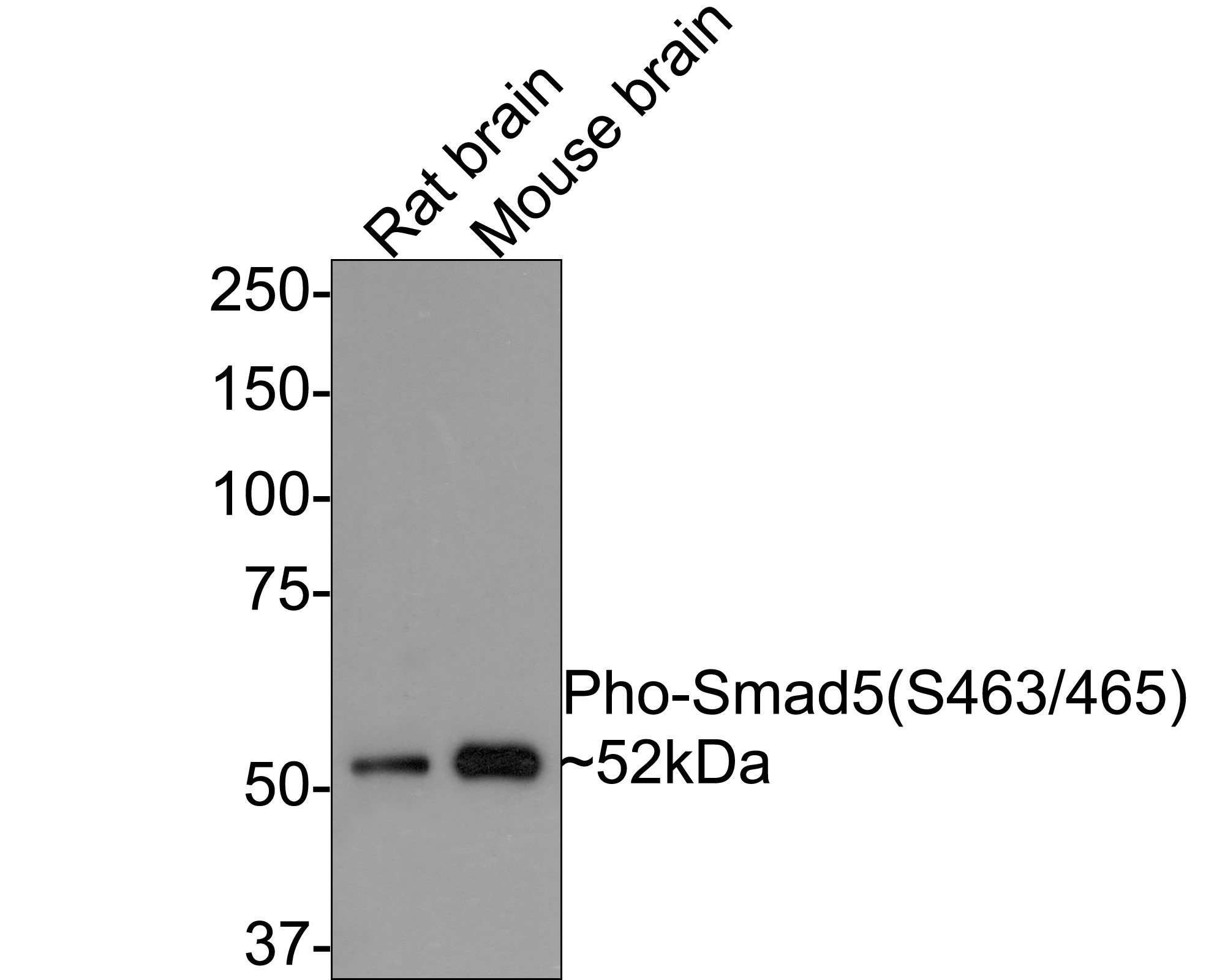 Western blot analysis of Phospho-Smad5(S463/465) on different lysates. Proteins were transferred to a PVDF membrane and blocked with 5% BSA in PBS for 1 hour at room temperature. The primary antibody (ET1605-5, 1/500) was used in 5% BSA at room temperature for 2 hours. Goat Anti-Rabbit IgG - HRP Secondary Antibody (HA1001) at 1:5,000 dilution was used for 1 hour at room temperature.<br />  Positive control: <br />  Lane 1: mouse brain tissue lysate<br />  Lane 2: rat brain tissue lysate