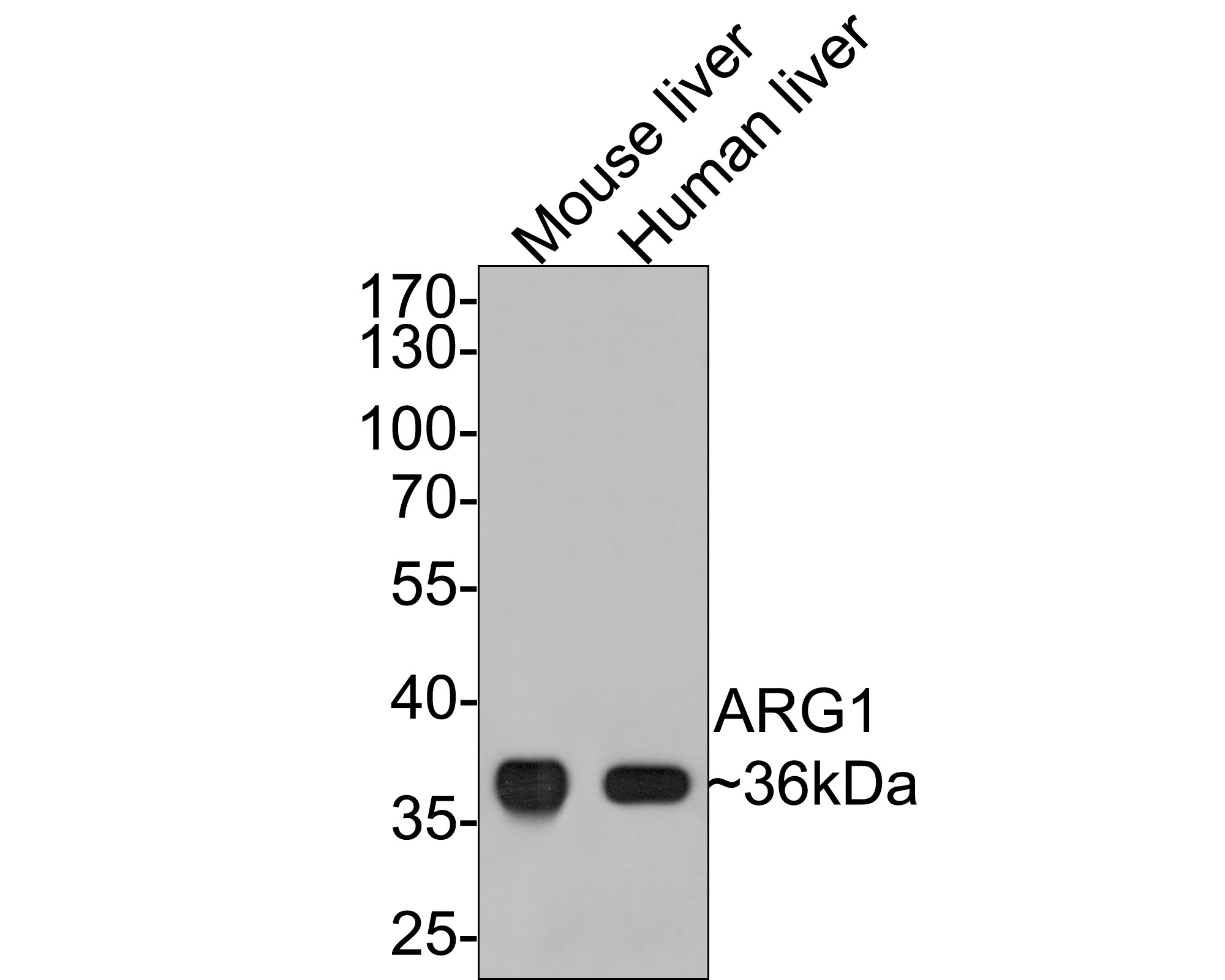 Western blot analysis of ARG1 on different lysates. Proteins were transferred to a PVDF membrane and blocked with 5% BSA in PBS for 1 hour at room temperature. The primary antibody (ET1605-8, 1/500) was used in 5% BSA at room temperature for 2 hours. Goat Anti-Rabbit IgG - HRP Secondary Antibody (HA1001) at 1:5,000 dilution was used for 1 hour at room temperature.<br /> Positive control: <br /> Lane 1: human lung tissue lysate<br /> Lane 2: human liver tissue lysate