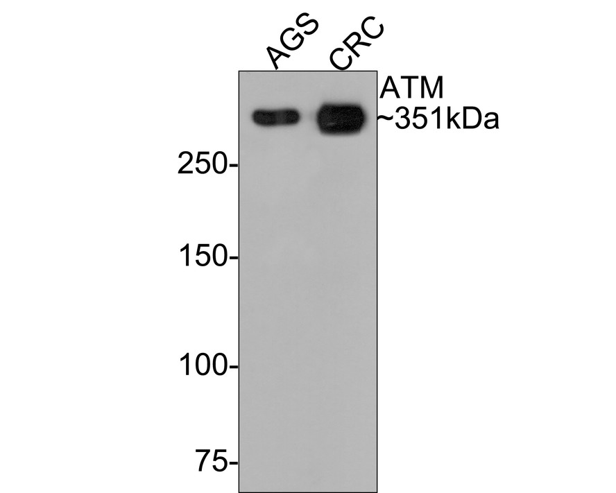 Western blot analysis of ATM on different lysates. Proteins were transferred to a PVDF membrane and blocked with 5% BSA in PBS for 1 hour at room temperature. The primary antibody (ET1606-20, 1/500) was used in 5% BSA at room temperature for 2 hours. Goat Anti-Rabbit IgG - HRP Secondary Antibody (HA1001) at 1:5,000 dilution was used for 1 hour at room temperature.<br /> Positive control: <br /> Lane 1: AGS cell lysate<br /> Lane 2: CRC cell lysate