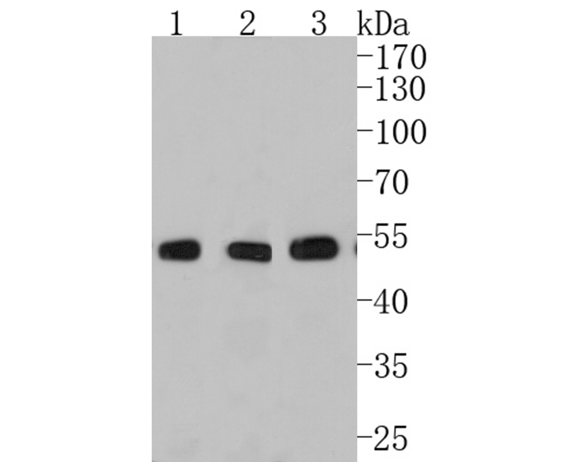 Western blot analysis of Phospho-p53(S392) on different lysates. Proteins were transferred to a PVDF membrane and blocked with 5% BSA in PBS for 1 hour at room temperature. The primary antibody (ET1606-24, 1/500) was used in 5% BSA at room temperature for 2 hours. Goat Anti-Rabbit IgG - HRP Secondary Antibody (HA1001) at 1:5,000 dilution was used for 1 hour at room temperature.<br /> Positive control: <br /> Lane 1: 293 cell lysate<br /> Lane 2: F9 cell lysate<br /> Lane 3: A431 cell lysate