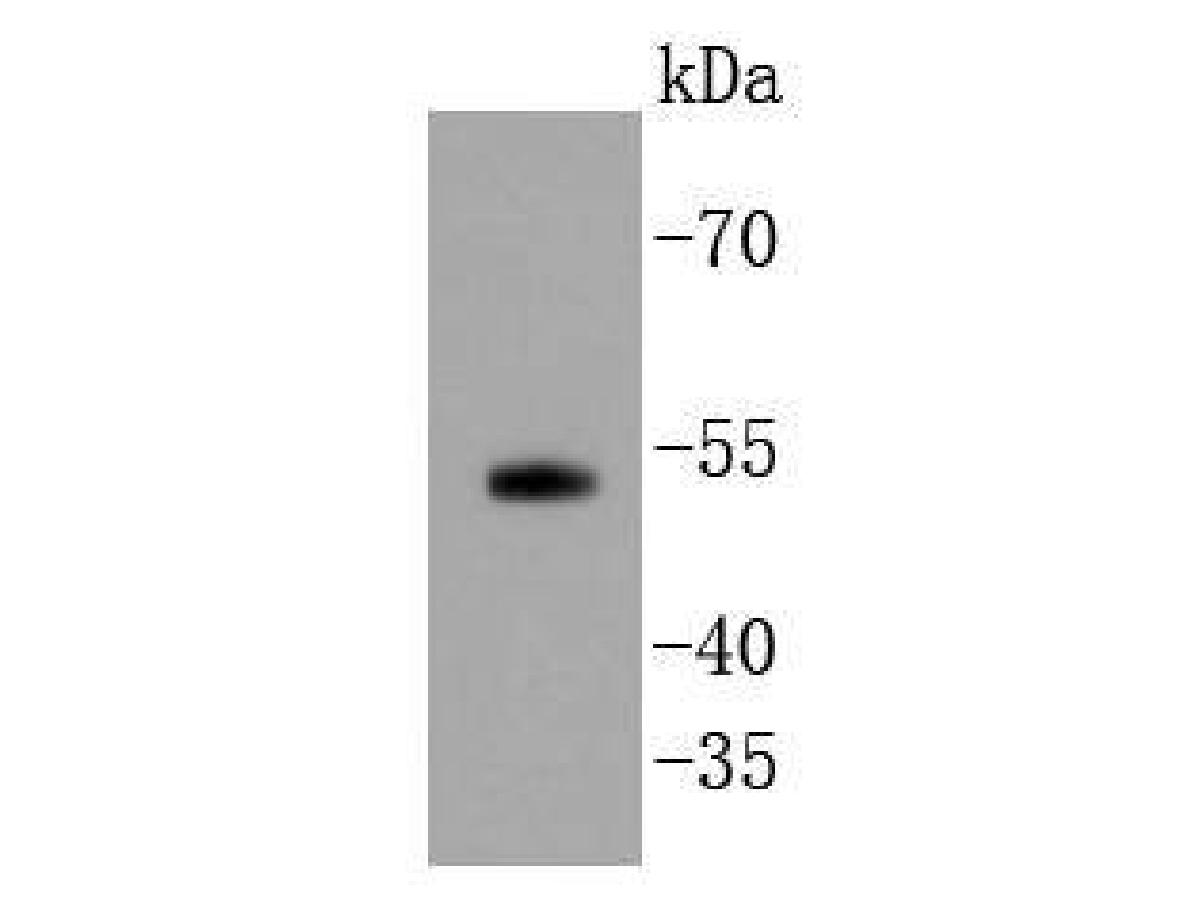 Western blot analysis of Smad5 on PC-3M cell lysates using anti-Smad5 antibody at 1/1,000 dilution.