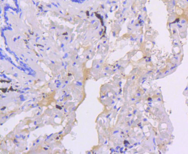 Immunohistochemical analysis of paraffin-embedded human lung tissue using anti-Smad5 antibody. The section was pre-treated using heat mediated antigen retrieval with Tris-EDTA buffer (pH 8.0-8.4) for 20 minutes.The tissues were blocked in 5% BSA for 30 minutes at room temperature, washed with ddH2O and PBS, and then probed with the primary antibody (ET1606-26, 1/50) for 30 minutes at room temperature. The detection was performed using an HRP conjugated compact polymer system. DAB was used as the chromogen. Tissues were counterstained with hematoxylin and mounted with DPX.