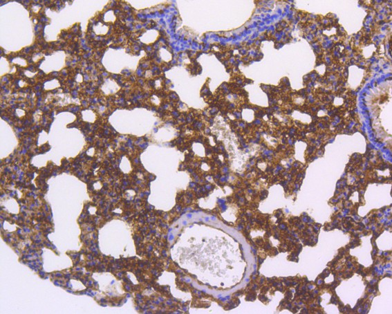 Immunohistochemical analysis of paraffin-embedded mouse lung tissue using anti-Smad5 antibody. The section was pre-treated using heat mediated antigen retrieval with Tris-EDTA buffer (pH 8.0-8.4) for 20 minutes.The tissues were blocked in 5% BSA for 30 minutes at room temperature, washed with ddH2O and PBS, and then probed with the primary antibody (ET1606-26, 1/50) for 30 minutes at room temperature. The detection was performed using an HRP conjugated compact polymer system. DAB was used as the chromogen. Tissues were counterstained with hematoxylin and mounted with DPX.