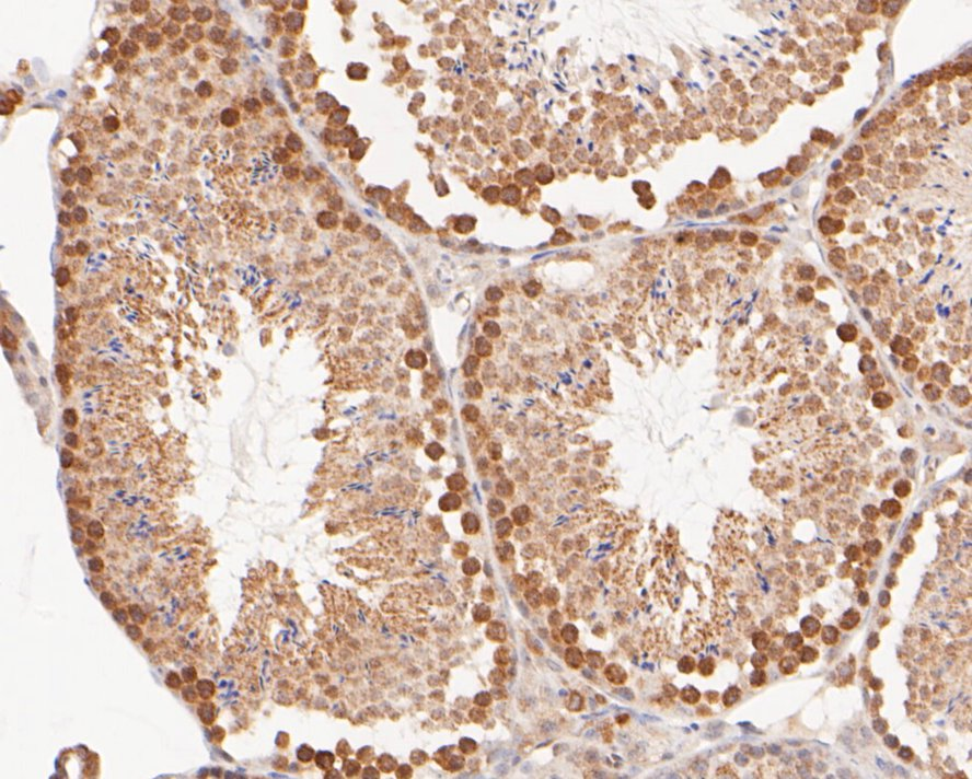 Immunohistochemical analysis of paraffin-embedded mouse testis tissue using anti-Smad5 antibody. The section was pre-treated using heat mediated antigen retrieval with Tris-EDTA buffer (pH 8.0-8.4) for 20 minutes.The tissues were blocked in 5% BSA for 30 minutes at room temperature, washed with ddH2O and PBS, and then probed with the primary antibody (ET1606-26, 1/50) for 30 minutes at room temperature. The detection was performed using an HRP conjugated compact polymer system. DAB was used as the chromogen. Tissues were counterstained with hematoxylin and mounted with DPX.