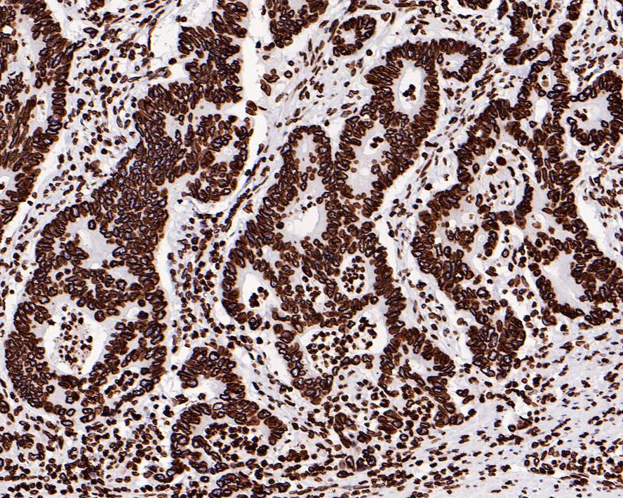 Immunohistochemical analysis of paraffin-embedded human breast carcinoma tissue using anti-Lamin B1 antibody. The section was pre-treated using heat mediated antigen retrieval with Tris-EDTA buffer (pH 8.0-8.4) for 20 minutes.The tissues were blocked in 5% BSA for 30 minutes at room temperature, washed with ddH2O and PBS, and then probed with the primary antibody (ET1606-27, 1/50) for 30 minutes at room temperature. The detection was performed using an HRP conjugated compact polymer system. DAB was used as the chromogen. Tissues were counterstained with hematoxylin and mounted with DPX.