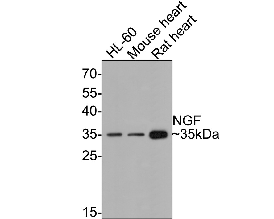 Western blot analysis of NGF on different lysates. Proteins were transferred to a PVDF membrane and blocked with 5% BSA in PBS for 1 hour at room temperature. The primary antibody (ET1606-29, 1/500) was used in 5% BSA at room temperature for 2 hours. Goat Anti-Rabbit IgG - HRP Secondary Antibody (HA1001) at 1:5,000 dilution was used for 1 hour at room temperature.<br /> Positive control: <br /> Lane 1: Hela cell lysate<br /> Lane 2: HL-60 cell lysate