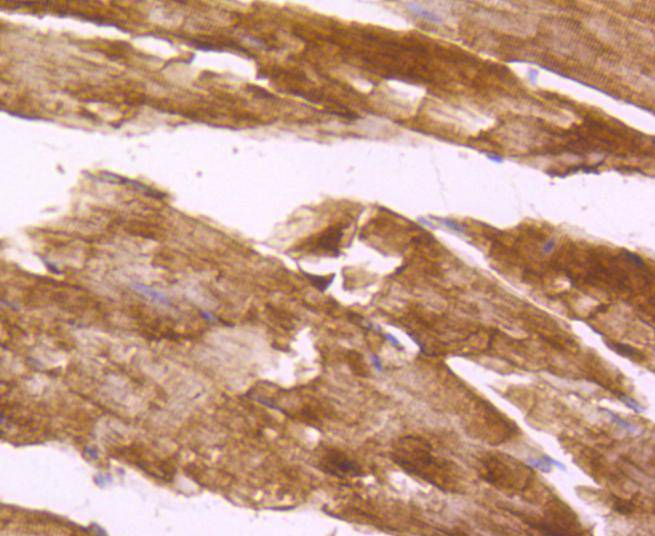 Immunohistochemical analysis of paraffin-embedded mouse skeletal muscle tissue using anti-Desmin antibody. The section was pre-treated using heat mediated antigen retrieval with Tris-EDTA buffer (pH 8.0-8.4) for 20 minutes.The tissues were blocked in 5% BSA for 30 minutes at room temperature, washed with ddH2O and PBS, and then probed with the primary antibody (ET1606-30, 1/50) for 30 minutes at room temperature. The detection was performed using an HRP conjugated compact polymer system. DAB was used as the chromogen. Tissues were counterstained with hematoxylin and mounted with DPX.