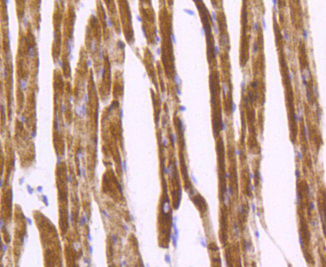 Immunohistochemical analysis of paraffin-embedded mouse heart tissue using anti-Desmin antibody. The section was pre-treated using heat mediated antigen retrieval with Tris-EDTA buffer (pH 8.0-8.4) for 20 minutes.The tissues were blocked in 5% BSA for 30 minutes at room temperature, washed with ddH2O and PBS, and then probed with the primary antibody (ET1606-30, 1/50) for 30 minutes at room temperature. The detection was performed using an HRP conjugated compact polymer system. DAB was used as the chromogen. Tissues were counterstained with hematoxylin and mounted with DPX.