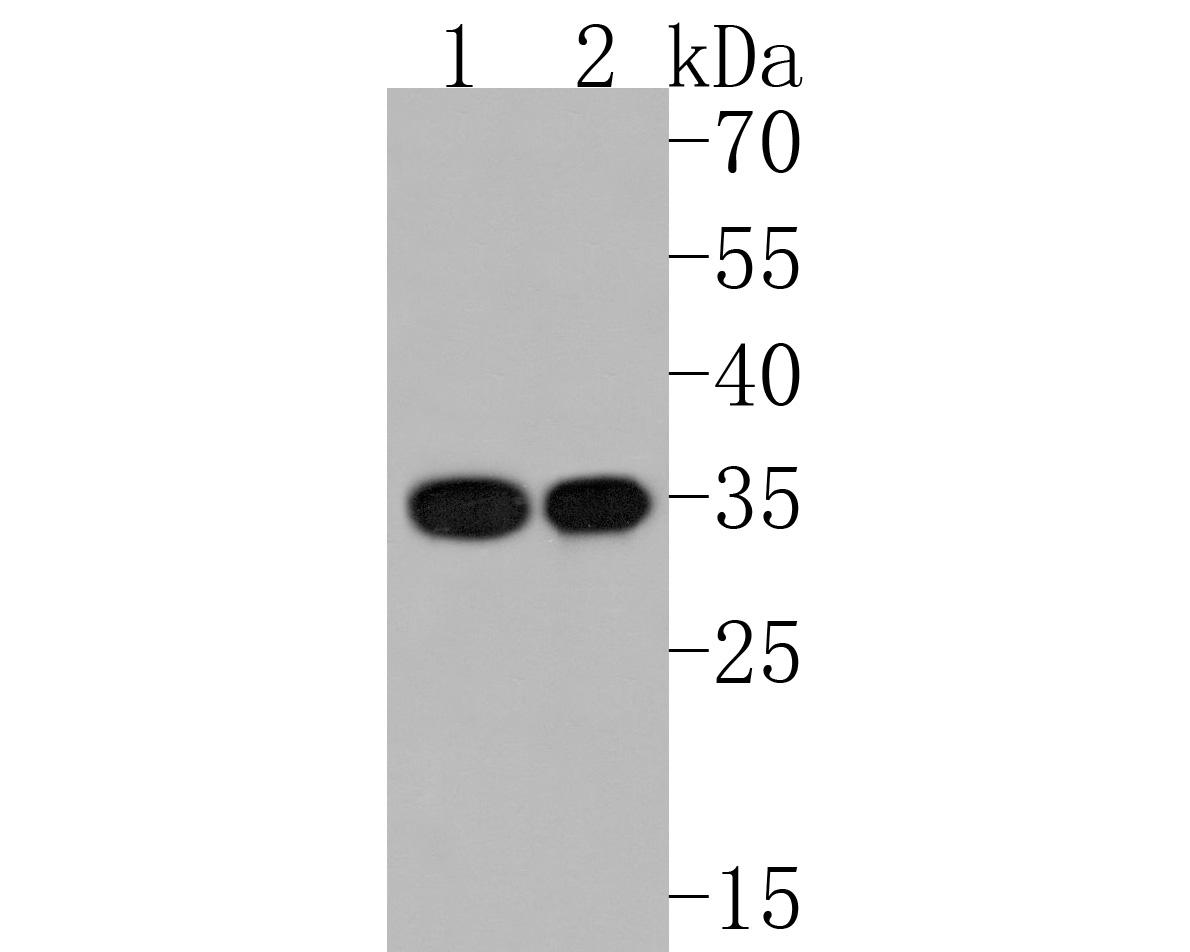 Western blot analysis of CD8 alpha on different lysates. Proteins were transferred to a PVDF membrane and blocked with 5% BSA in PBS for 1 hour at room temperature. The primary antibody (ET1606-31, 1/500) was used in 5% BSA at room temperature for 2 hours. Goat Anti-Rabbit IgG - HRP Secondary Antibody (HA1001) at 1:5,000 dilution was used for 1 hour at room temperature.<br /> Positive control: <br /> Lane 1: Hela cell lysate<br /> Lane 2: LOVO cell lysate