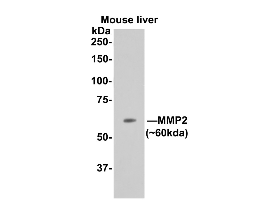 Immunohistochemical analysis of paraffin-embedded mouse liver tissue using anti-MMP2 antibody. Counter stained with hematoxylin.