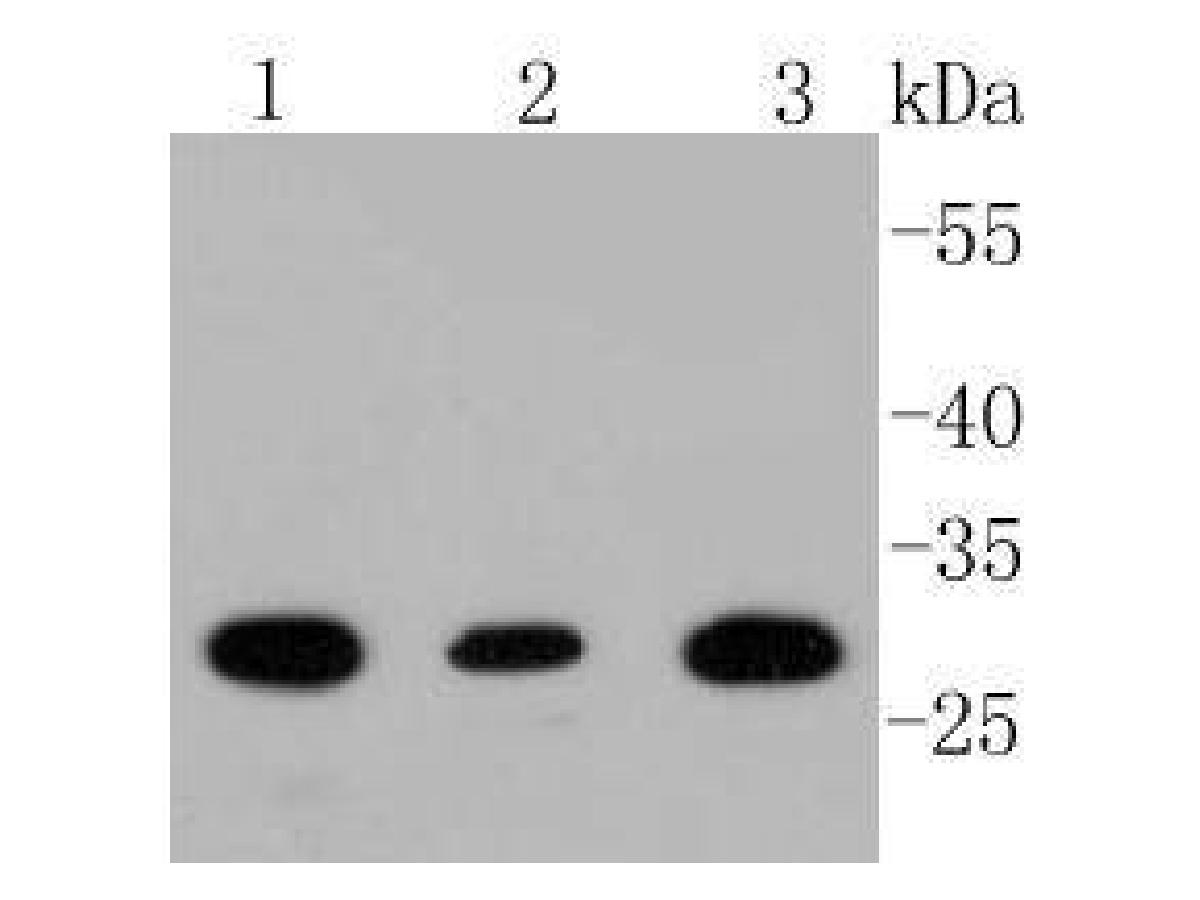 Western blot analysis of BDNF on different lysates. Proteins were transferred to a PVDF membrane and blocked with 5% BSA in PBS for 1 hour at room temperature. The primary antibody (ET1606-42, 1/500) was used in 5% BSA at room temperature for 2 hours. Goat Anti-Rabbit IgG - HRP Secondary Antibody (HA1001) at 1:5,000 dilution was used for 1 hour at room temperature.<br /> Positive control: <br /> Lane 1: SHG-44 cell lysate<br /> Lane 2: A172 cell lysate<br /> Lane 3: Mouse brain tissue lysate