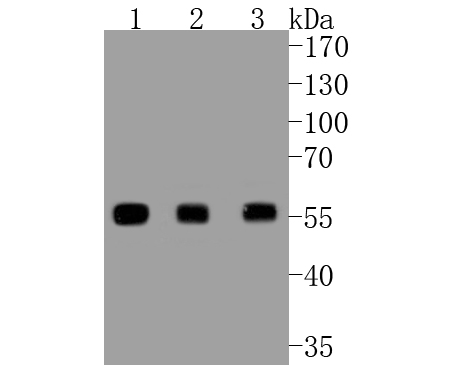 ICC staining of PTEN in A549 cells (green). Formalin fixed cells were permeabilized with 0.1% Triton X-100 in TBS for 10 minutes at room temperature and blocked with 1% Blocker BSA for 15 minutes at room temperature. Cells were probed with the primary antibody (ET1606-43, 1/100) for 1 hour at room temperature, washed with PBS. Alexa Fluor®488 Goat anti-Rabbit IgG was used as the secondary antibody at 1/1,000 dilution. The nuclear counter stain is DAPI (blue).