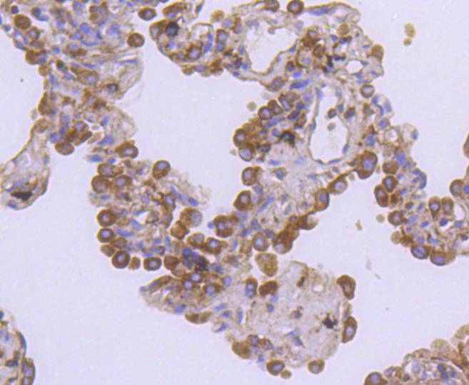 Immunohistochemical analysis of paraffin-embedded human lung carcinoma tissue using anti-Met(C-Met) antibody. The section was pre-treated using heat mediated antigen retrieval with Tris-EDTA buffer (pH 8.0-8.4) for 20 minutes.The tissues were blocked in 5% BSA for 30 minutes at room temperature, washed with ddH2O and PBS, and then probed with the primary antibody (ET1606-45, 1/50) for 30 minutes at room temperature. The detection was performed using an HRP conjugated compact polymer system. DAB was used as the chromogen. Tissues were counterstained with hematoxylin and mounted with DPX.