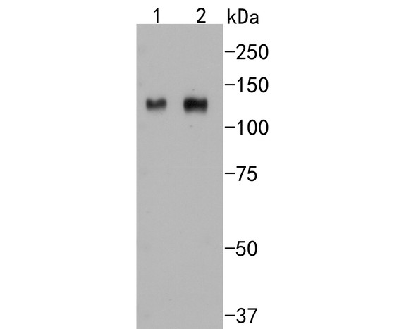 Western blot analysis of Integrin beta 3 on different lysates. Proteins were transferred to a PVDF membrane and blocked with 5% BSA in PBS for 1 hour at room temperature. The primary antibody (ET1606-49, 1/500) was used in 5% BSA at room temperature for 2 hours. Goat Anti-Rabbit IgG - HRP Secondary Antibody (HA1001) at 1:5,000 dilution was used for 1 hour at room temperature.<br /> Positive control: <br /> Lane 1: HUVEC cell lysate<br /> Lane 2: mouse marrow tissue lysate