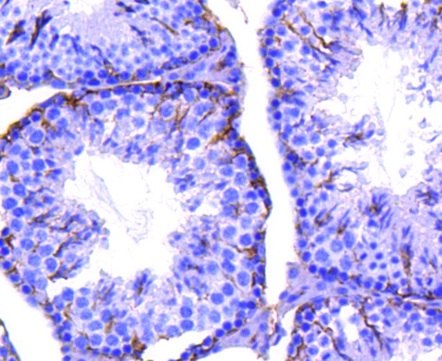 Immunohistochemical analysis of paraffin-embedded mouse testis tissue using anti-Integrin beta 3 antibody. The section was pre-treated using heat mediated antigen retrieval with Tris-EDTA buffer (pH 8.0-8.4) for 20 minutes.The tissues were blocked in 5% BSA for 30 minutes at room temperature, washed with ddH2O and PBS, and then probed with the primary antibody (ET1606-49, 1/50) for 30 minutes at room temperature. The detection was performed using an HRP conjugated compact polymer system. DAB was used as the chromogen. Tissues were counterstained with hematoxylin and mounted with DPX.
