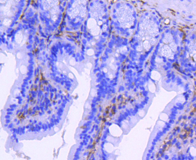 Immunohistochemical analysis of paraffin-embedded mouse colon tissue using anti-Integrin beta 3 antibody. The section was pre-treated using heat mediated antigen retrieval with Tris-EDTA buffer (pH 8.0-8.4) for 20 minutes.The tissues were blocked in 5% BSA for 30 minutes at room temperature, washed with ddH2O and PBS, and then probed with the primary antibody (ET1606-49, 1/50) for 30 minutes at room temperature. The detection was performed using an HRP conjugated compact polymer system. DAB was used as the chromogen. Tissues were counterstained with hematoxylin and mounted with DPX.