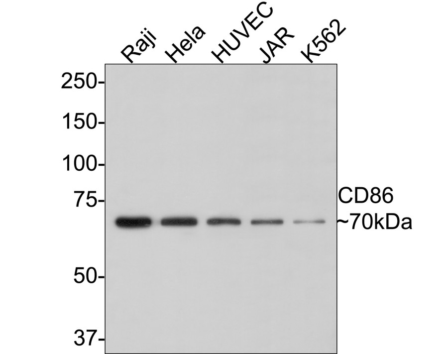 Western blot analysis of CD86 on different lysates. Proteins were transferred to a PVDF membrane and blocked with 5% BSA in PBS for 1 hour at room temperature. The primary antibody (ET1606-50, 1/500) was used in 5% BSA at room temperature for 2 hours. Goat Anti-Rabbit IgG - HRP Secondary Antibody (HA1001) at 1:5,000 dilution was used for 1 hour at room temperature.<br />  Positive control: <br />  Lane 1: Raji cell lysate<br />  Lane 2: Hela cell lysate<br />  Lane 3: HepG2 cell lysate<br />  Lane 4: MCF-7 cell lysate