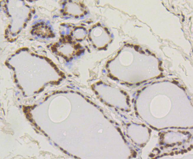 Immunohistochemical analysis of paraffin-embedded human thyroid tissue using anti-SUMO-1 antibody. The section was pre-treated using heat mediated antigen retrieval with Tris-EDTA buffer (pH 8.0-8.4) for 20 minutes.The tissues were blocked in 5% BSA for 30 minutes at room temperature, washed with ddH2O and PBS, and then probed with the primary antibody (ET1606-53, 1/50) for 30 minutes at room temperature. The detection was performed using an HRP conjugated compact polymer system. DAB was used as the chromogen. Tissues were counterstained with hematoxylin and mounted with DPX.