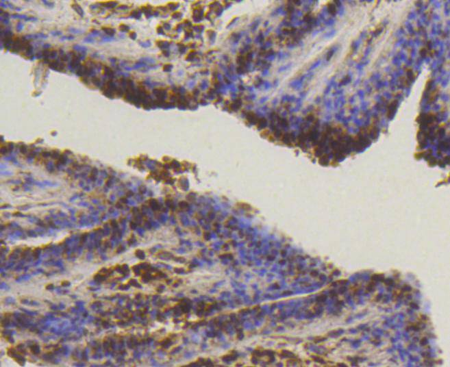 Immunohistochemical analysis of paraffin-embedded human breast carcinoma tissue using anti-SUMO-1 antibody. The section was pre-treated using heat mediated antigen retrieval with Tris-EDTA buffer (pH 8.0-8.4) for 20 minutes.The tissues were blocked in 5% BSA for 30 minutes at room temperature, washed with ddH2O and PBS, and then probed with the primary antibody (ET1606-53, 1/50) for 30 minutes at room temperature. The detection was performed using an HRP conjugated compact polymer system. DAB was used as the chromogen. Tissues were counterstained with hematoxylin and mounted with DPX.