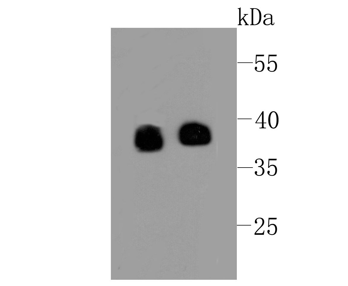Western blot analysis of Synaptophysin on different lysates using anti-Synaptophysin at 1/500 dilution.<br /> Positive control:<br /> Lane 1: Human brain<br /> Lane 2: PC-12
