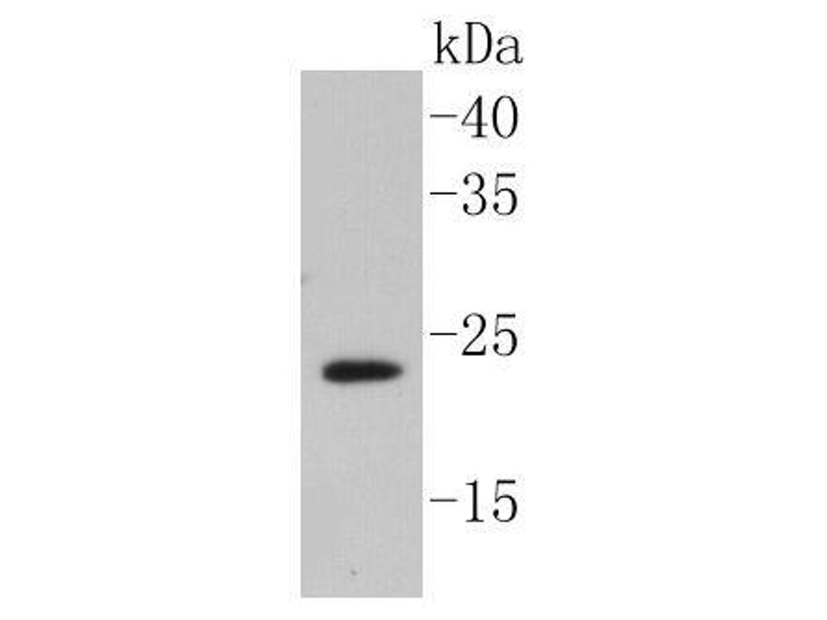Western blot analysis of caveolin-2 on HUVEC cell lysates using anti-caveolin-2 antibody at 1/1,000 dilution.