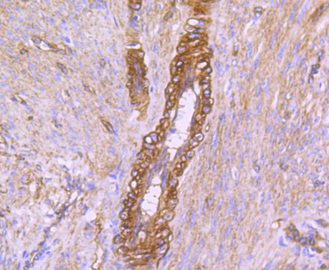Immunohistochemical analysis of paraffin-embedded human uterus tissue using anti-caveolin-2 antibody. Counter stained with hematoxylin.