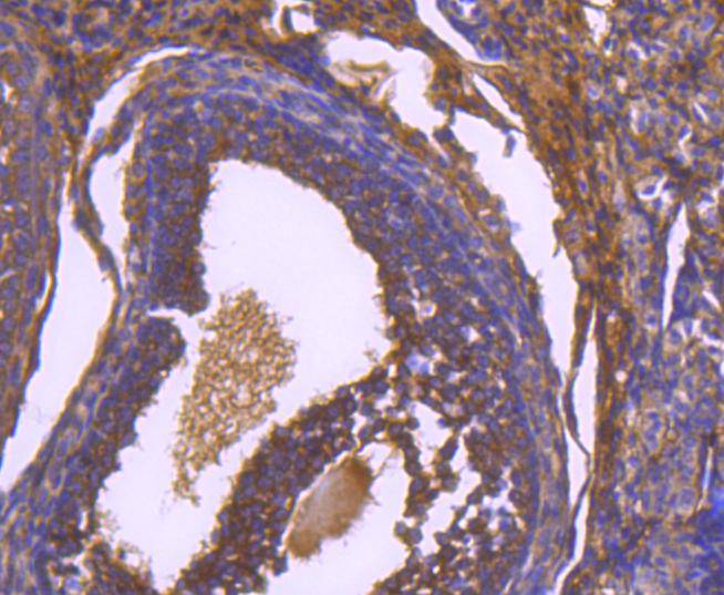 Immunohistochemical analysis of paraffin-embedded mouse ovary tissue using anti-Paxillin antibody. The section was pre-treated using heat mediated antigen retrieval with Tris-EDTA buffer (pH 8.0-8.4) for 20 minutes.The tissues were blocked in 5% BSA for 30 minutes at room temperature, washed with ddH2O and PBS, and then probed with the primary antibody (ET1607-22, 1/50) for 30 minutes at room temperature. The detection was performed using an HRP conjugated compact polymer system. DAB was used as the chromogen. Tissues were counterstained with hematoxylin and mounted with DPX.