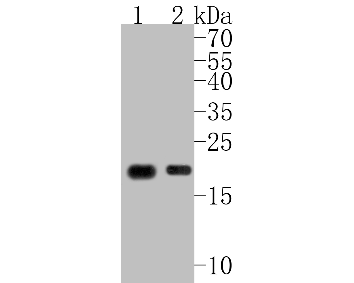 Western blot analysis of CD3 epsilon on different lysates. Proteins were transferred to a PVDF membrane and blocked with 5% BSA in PBS for 1 hour at room temperature. The primary antibody (ET1607-29, 1/500) was used in 5% BSA at room temperature for 2 hours. Goat Anti-Rabbit IgG - HRP Secondary Antibody (HA1001) at 1:5,000 dilution was used for 1 hour at room temperature.<br /> Positive control: <br /> Lane 1: human thymus tissue lysate<br /> Lane 2: Jurkat cell lysate