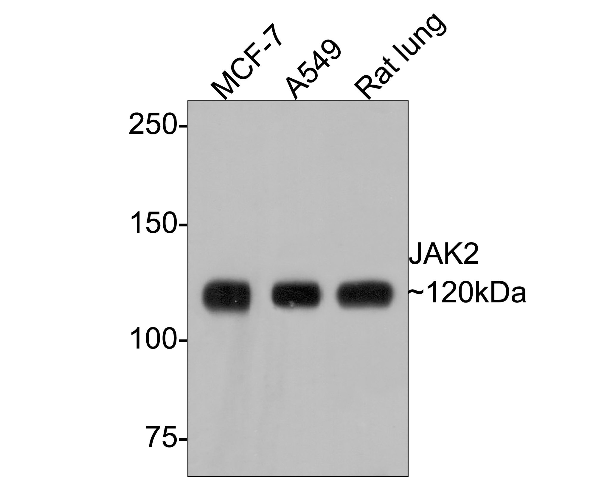 Western blot analysis of JAK2 on different lysates. Proteins were transferred to a PVDF membrane and blocked with 5% BSA in PBS for 1 hour at room temperature. The primary antibody (ET1607-35, 1/500) was used in 5% BSA at room temperature for 2 hours. Goat Anti-Rabbit IgG - HRP Secondary Antibody (HA1001) at 1:5,000 dilution was used for 1 hour at room temperature.<br /> Positive control: <br /> Lane 1: A549 cell lysate<br /> Lane 2: MCF-7 cell lysate