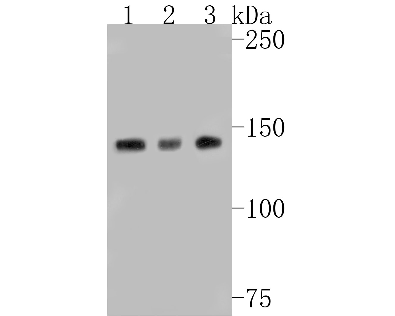 Western blot analysis of N Cadherin on different lysates. Proteins were transferred to a PVDF membrane and blocked with 5% BSA in PBS for 1 hour at room temperature. The primary antibody (ET1607-37, 1/500) was used in 5% BSA at room temperature for 2 hours. Goat Anti-Rabbit IgG - HRP Secondary Antibody (HA1001) at 1:5,000 dilution was used for 1 hour at room temperature.<br /> Positive control: <br /> Lane 1: SH-SY5Y cell lysate<br /> Lane 2: Hela cell lysate<br /> Lane 3: NIH/3T3 cell lysate