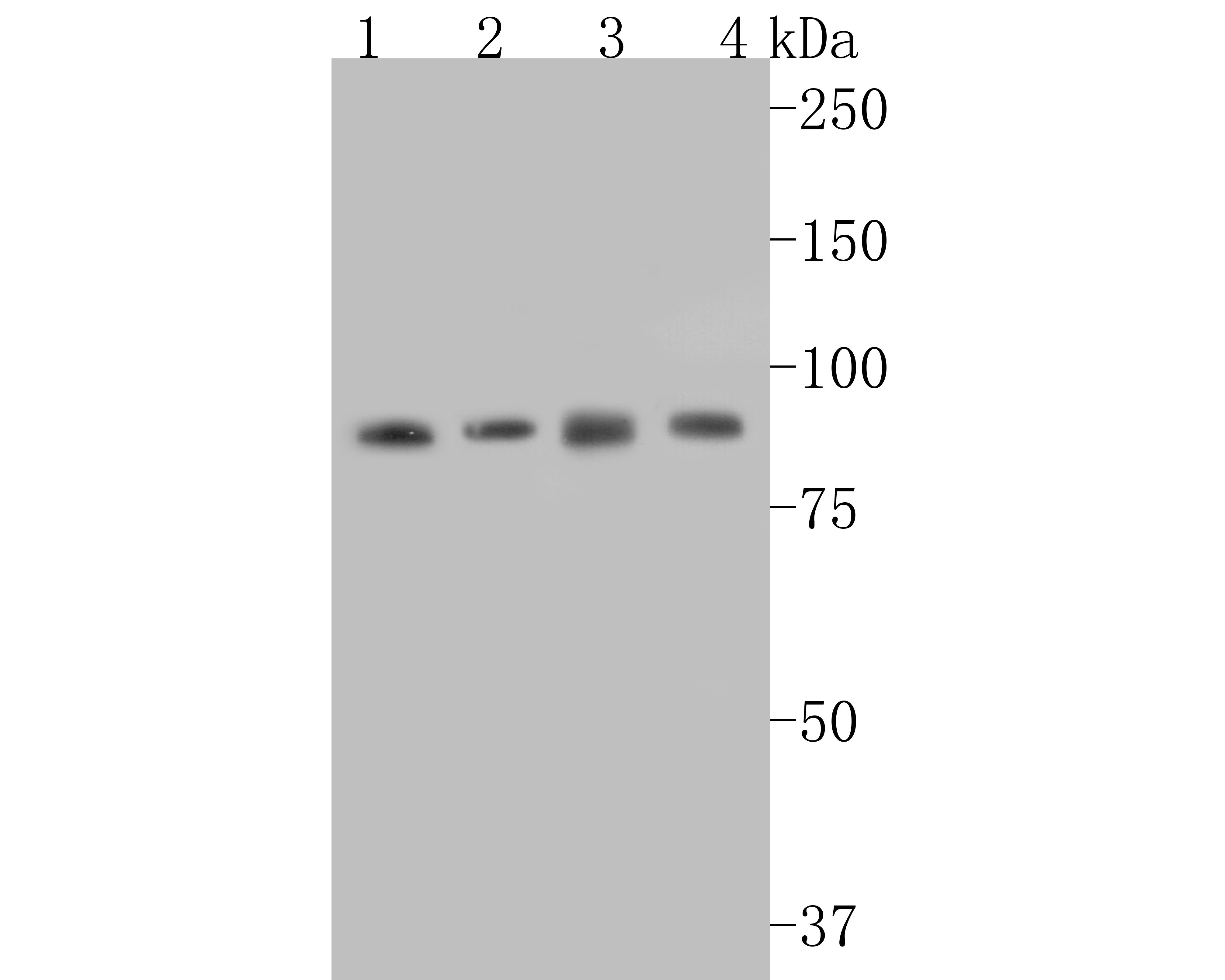 Western blot analysis of Stat3 on different lysates. Proteins were transferred to a PVDF membrane and blocked with 5% BSA in PBS for 1 hour at room temperature. The primary antibody (ET1607-38, 1/500) was used in 5% BSA at room temperature for 2 hours. Goat Anti-Rabbit IgG - HRP Secondary Antibody (HA1001) at 1:5,000 dilution was used for 1 hour at room temperature.<br />  Positive control: <br />  Lane 1: SiHa cell lysate<br />  Lane 2: SW480 cell lysate<br />  Lane 1: PC-12 cell lysate<br />  Lane 2: SHG-44 cell lysate