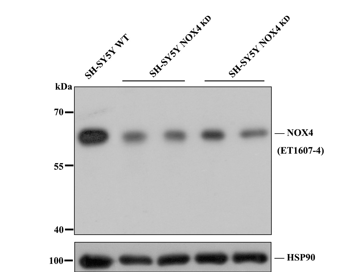 Western blot analysis of NADPH oxidase 4/NOX4 on different lysates. Proteins were transferred to a PVDF membrane and blocked with 5% BSA in PBS for 1 hour at room temperature. The primary antibody (ET1607-4, 1/500) was used in 5% BSA at room temperature for 2 hours. Goat Anti-Rabbit IgG - HRP Secondary Antibody (HA1001) at 1:5,000 dilution was used for 1 hour at room temperature.<br /> Positive control: <br /> Lane 1: JAR cell lysate<br /> Lane 2: SH-SY5Y cell lysate