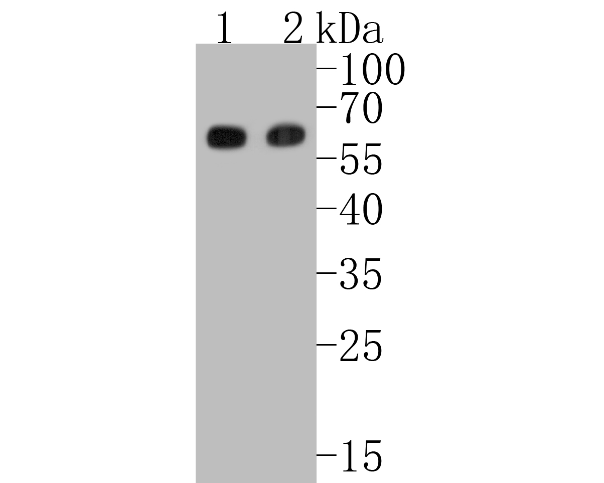 Western blot analysis of Smad3 on different lysates. Proteins were transferred to a PVDF membrane and blocked with 5% BSA in PBS for 1 hour at room temperature. The primary antibody (ET1607-41, 1/500) was used in 5% BSA at room temperature for 2 hours. Goat Anti-Rabbit IgG - HRP Secondary Antibody (HA1001) at 1:5,000 dilution was used for 1 hour at room temperature. Positive control:  Lane 1: A549 cell lysate Lane 2: mouse spleen tissue lysate