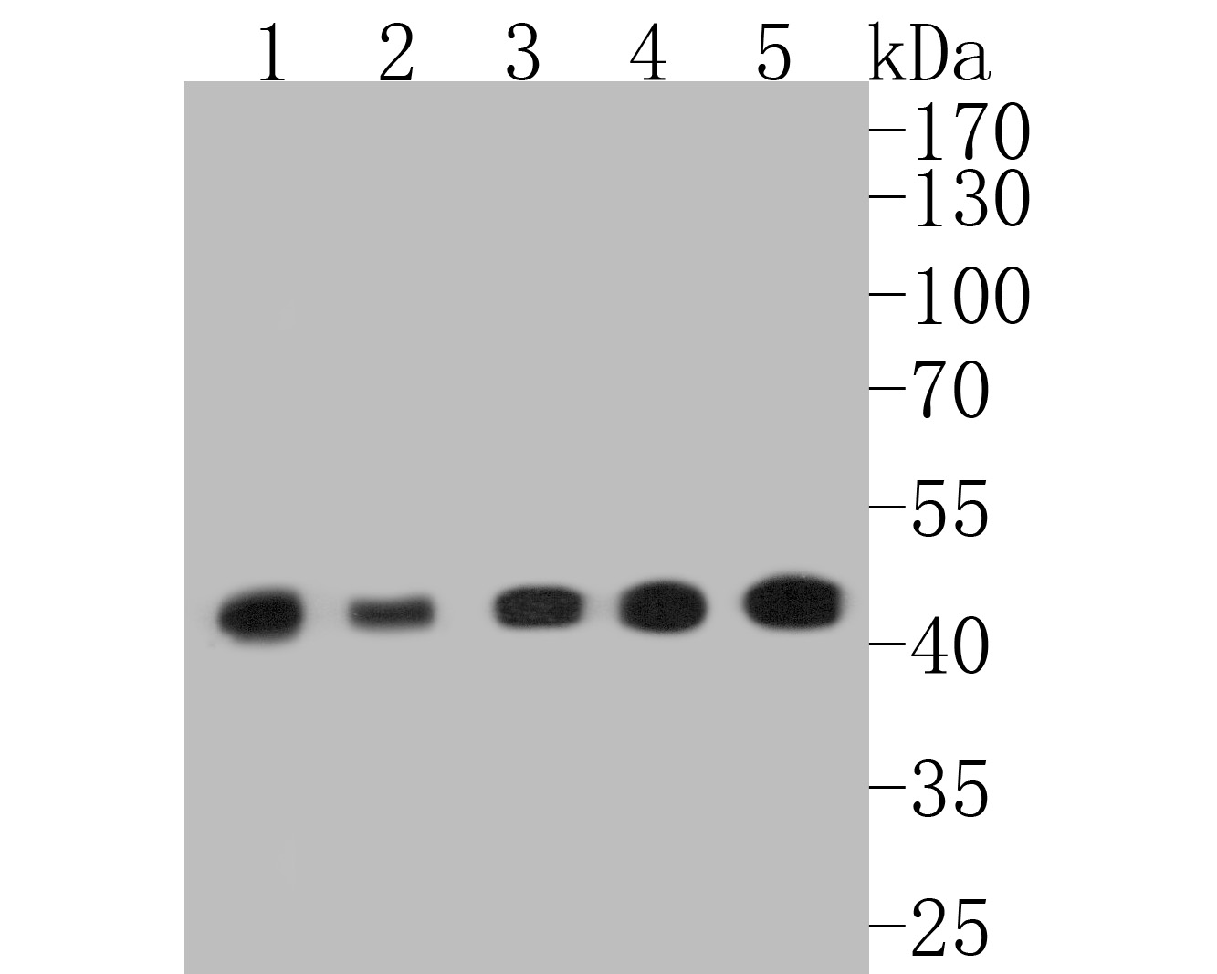 Western blot analysis of alpha smooth muscle Actin on different lysates. Proteins were transferred to a PVDF membrane and blocked with 5% BSA in PBS for 1 hour at room temperature. The primary antibody (ET1607-53, 1/500) was used in 5% BSA at room temperature for 2 hours. Goat Anti-Rabbit IgG - HRP Secondary Antibody (HA1001) at 1:5,000 dilution was used for 1 hour at room temperature. Positive control:  Lane 1: A431 cell lysate Lane 2: Hela cell lysate Lane 3: NIH/3T3 cell lysate Lane 4: mouse heart tissue lysate Lane 5: mouse smooth muscle tissue lysate