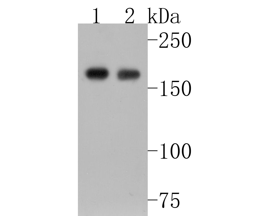 Western blot analysis of Topoisomerase Ⅱ alpha on different lysates. Proteins were transferred to a PVDF membrane and blocked with 5% BSA in PBS for 1 hour at room temperature. The primary antibody (ET1607-59, 1/500) was used in 5% BSA at room temperature for 2 hours. Goat Anti-Rabbit IgG - HRP Secondary Antibody (HA1001) at 1:5,000 dilution was used for 1 hour at room temperature.<br /> Positive control: <br /> Lane 1: mouse testis tissue lysate<br /> Lane 2: MCF-7 cell lysate