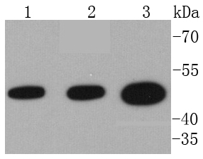 Western blot analysis of VASP on different lysates using anti-VASP antibody at 1/1,000 dilution.<br />  Positive control: <br />  Lane 1: Hela <br />  Lane 2: MCF-7 <br />  Lane 3: HT29