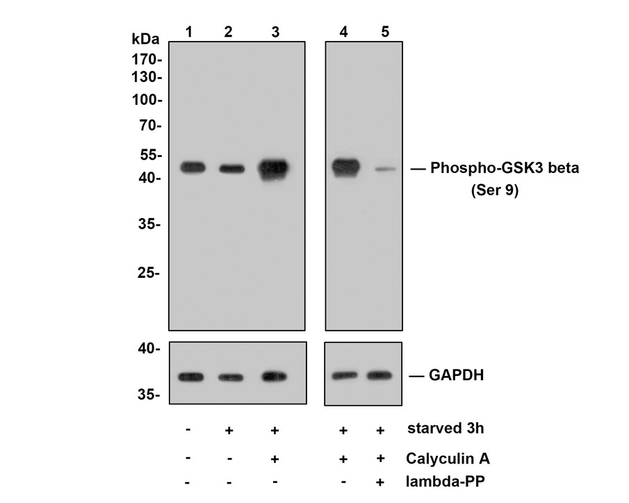 Western blot analysis of Phospho-GSK3 beta(Ser 9) on different lysates. Proteins were transferred to a PVDF membrane and blocked with 5% BSA in PBS for 1 hour at room temperature. The primary antibody (ET1607-60, 1/500) was used in 5% BSA at room temperature for 2 hours. Goat Anti-Rabbit IgG - HRP Secondary Antibody (HA1001) at 1:5,000 dilution was used for 1 hour at room temperature.<br /> Positive control: <br /> Lane 1: Hela cell lysate<br /> Lane 2: A549 cell lysate