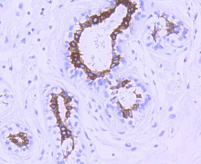 Immunohistochemical analysis of paraffin-embedded human breast carcinoma tissue using anti-Phospho-GSK3 beta(Ser 9) antibody. The section was pre-treated using heat mediated antigen retrieval with Tris-EDTA buffer (pH 8.0-8.4) for 20 minutes.The tissues were blocked in 5% BSA for 30 minutes at room temperature, washed with ddH2O and PBS, and then probed with the primary antibody (ET1607-60, 1/50) for 30 minutes at room temperature. The detection was performed using an HRP conjugated compact polymer system. DAB was used as the chromogen. Tissues were counterstained with hematoxylin and mounted with DPX.