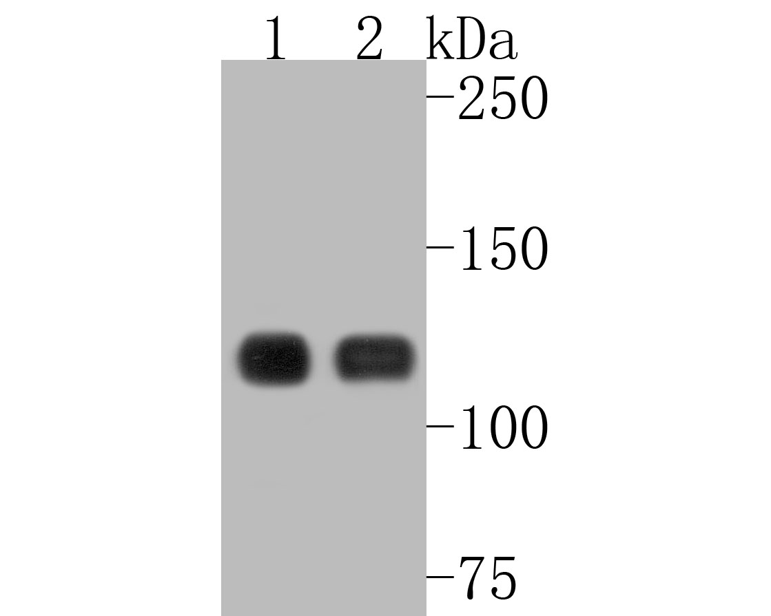 Western blot analysis of E-Cadherin on different lysates. Proteins were transferred to a PVDF membrane and blocked with 5% BSA in PBS for 1 hour at room temperature. The primary antibody (ET1607-75, 1/500) was used in 5% BSA at room temperature for 2 hours. Goat Anti-Rabbit IgG - HRP Secondary Antibody (HA1001) at 1:5,000 dilution was used for 1 hour at room temperature.<br /> Positive control: <br /> Lane 1: A431 cell lysate<br /> Lane 2: MCF-7 cell lysate