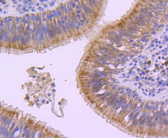 Flow cytometric analysis of E-Cadherin was done on A431 cells. The cells were fixed, permeabilized and stained with the primary antibody (ET1607-75, 1/50) (red). After incubation of the primary antibody at room temperature for an hour, the cells were stained with a Alexa Fluor 488-conjugated Goat anti-Rabbit IgG Secondary antibody at 1/1000 dilution for 30 minutes.Unlabelled sample was used as a control (cells without incubation with primary antibody; black).