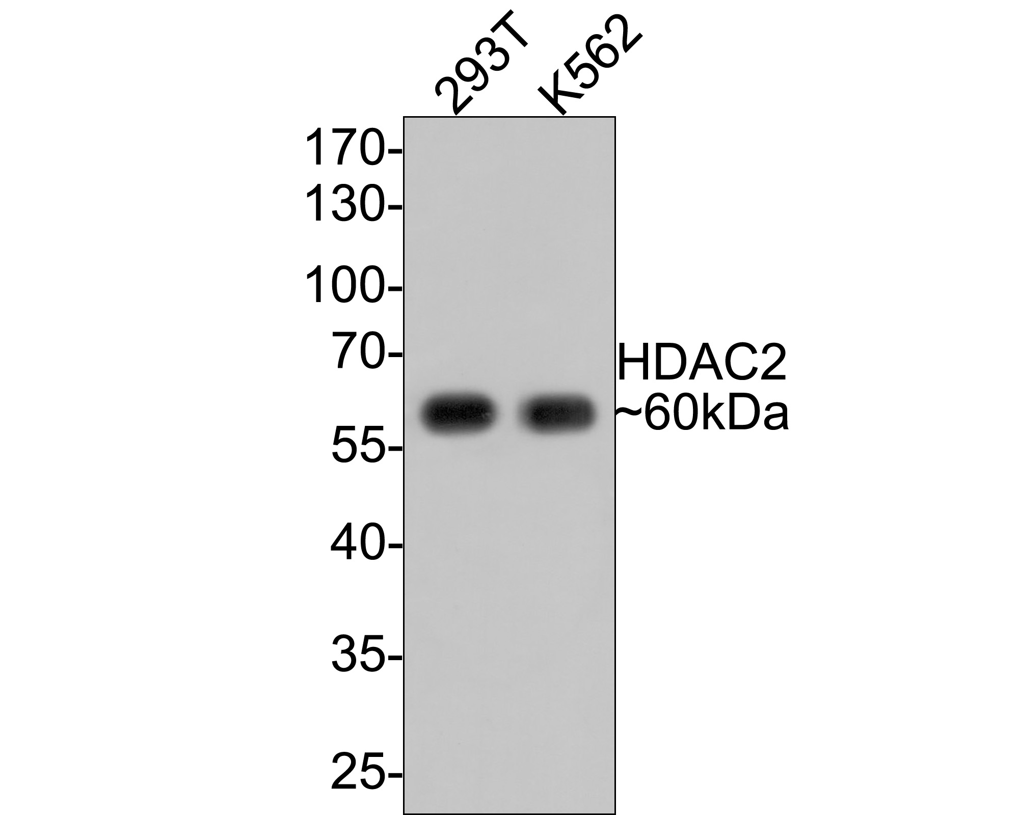 ICC staining of HDAC2 in Hela cells (green). Formalin fixed cells were permeabilized with 0.1% Triton X-100 in TBS for 10 minutes at room temperature and blocked with 1% Blocker BSA for 15 minutes at room temperature. Cells were probed with the primary antibody (ET1607-78, 1/50) for 1 hour at room temperature, washed with PBS. Alexa Fluor®488 Goat anti-Rabbit IgG was used as the secondary antibody at 1/1,000 dilution. The nuclear counter stain is DAPI (blue).
