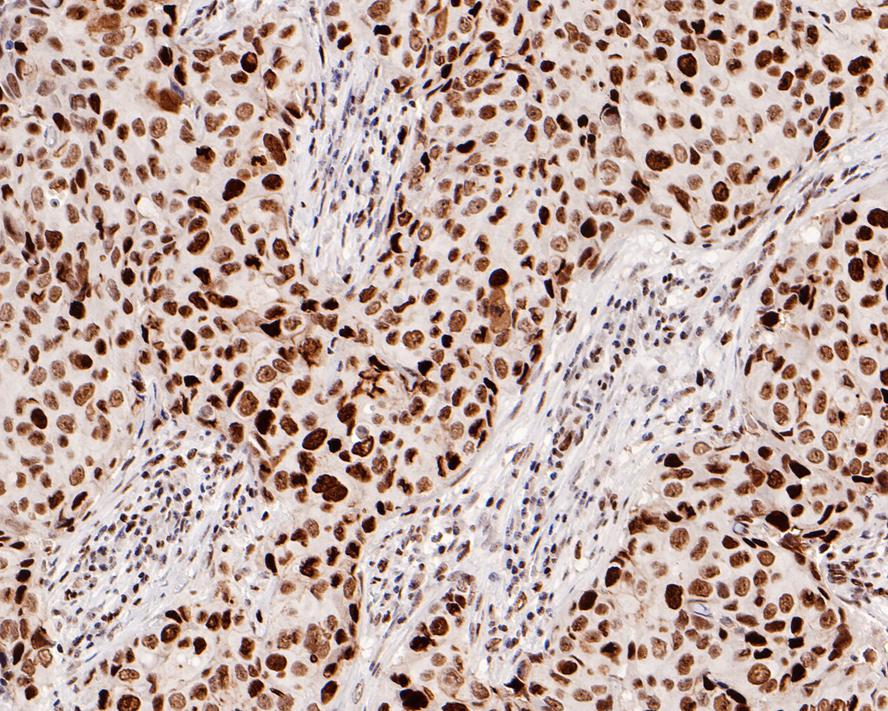 Immunohistochemical analysis of paraffin-embedded human breast carcinoma tissue using anti-Rb antibody. The section was pre-treated using heat mediated antigen retrieval with Tris-EDTA buffer (pH 8.0-8.4) for 20 minutes.The tissues were blocked in 5% BSA for 30 minutes at room temperature, washed with ddH2O and PBS, and then probed with the primary antibody (ET1607-9, 1/50) for 30 minutes at room temperature. The detection was performed using an HRP conjugated compact polymer system. DAB was used as the chromogen. Tissues were counterstained with hematoxylin and mounted with DPX.