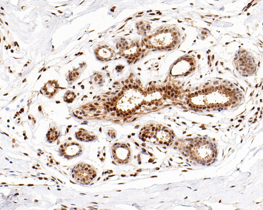 Immunohistochemical analysis of paraffin-embedded human lung tissue using anti-Phospho-HSF1(S326) antibody. The section was pre-treated using heat mediated antigen retrieval with sodium citrate buffer (pH 6.0) for 20 minutes. The tissues were blocked in 5% BSA for 30 minutes at room temperature, washed with ddH2O and PBS, and then probed with the primary antibody (ET1608-11, 1/50) for 30 minutes at room temperature. The detection was performed using an HRP conjugated compact polymer system. DAB was used as the chromogen. Tissues were counterstained with hematoxylin and mounted with DPX.