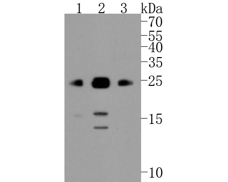 Western blot analysis of Bim on different lysates. Proteins were transferred to a PVDF membrane and blocked with 5% BSA in PBS for 1 hour at room temperature. The primary antibody (ET1608-14, 1/500) was used in 5% BSA at room temperature for 2 hours. Goat Anti-Rabbit IgG - HRP Secondary Antibody (HA1001) at 1:5,000 dilution was used for 1 hour at room temperature.<br />  Positive control: <br />  Lane 1: Raji cell lysate<br />  Lane 2: Jurkat cell lysate<br />  Lane 3: A431 cell lysate