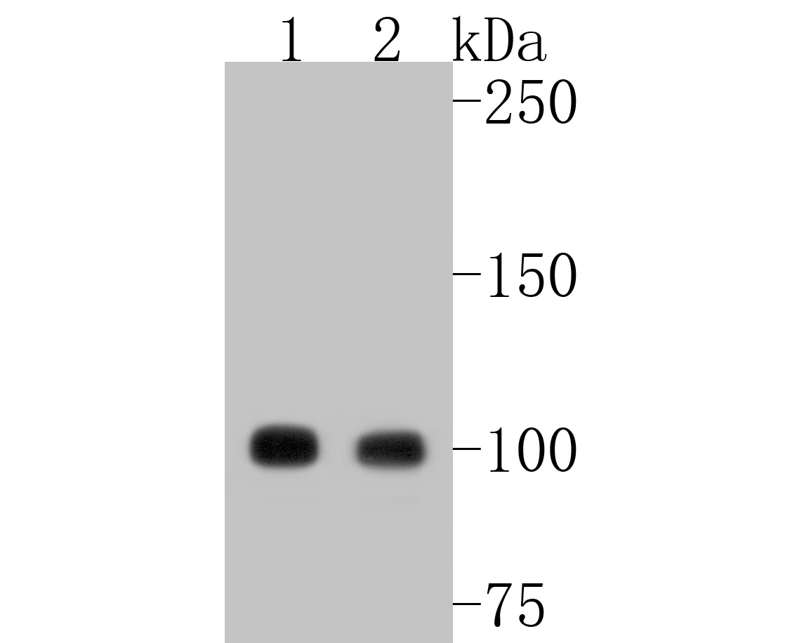 Western blot analysis of LGR5/GPR49 on different lysates. Proteins were transferred to a PVDF membrane and blocked with 5% BSA in PBS for 1 hour at room temperature. The primary antibody (ET1608-18, 1/500) was used in 5% BSA at room temperature for 2 hours. Goat Anti-Rabbit IgG - HRP Secondary Antibody (HA1001) at 1:5,000 dilution was used for 1 hour at room temperature.<br /> Positive control: <br /> Lane 1: mouse spinal cord tissue lysate<br /> Lane 2: human skeletal muscle tissue lysate