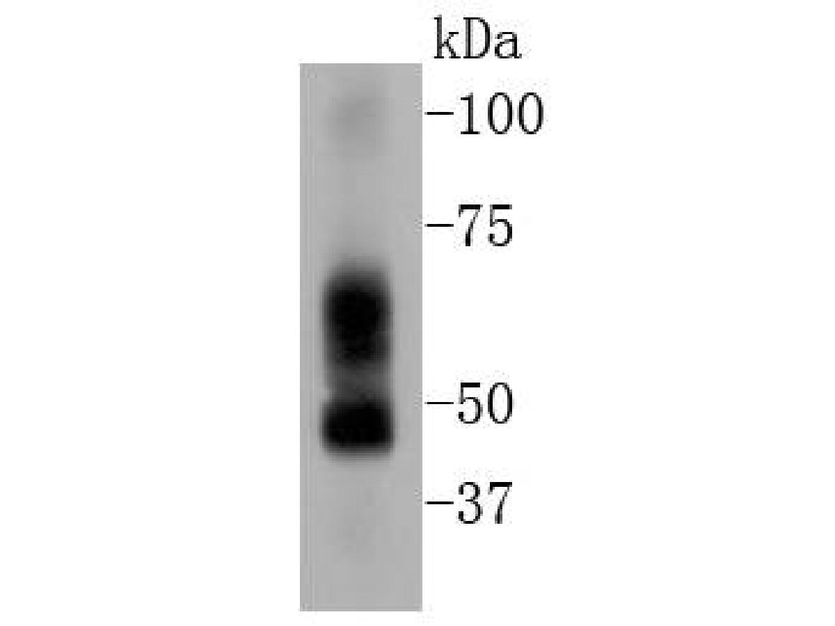 Western blot analysis of ELK1 on human lung tissue lysates. Proteins were transferred to a PVDF membrane and blocked with 5% BSA in PBS for 1 hour at room temperature. The primary antibody (ET1608-19, 1/500) was used in 5% BSA at room temperature for 2 hours. Goat Anti-Rabbit IgG - HRP Secondary Antibody (HA1001) at 1:200,000 dilution was used for 1 hour at room temperature.