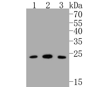 Western blot analysis of Bak on different lysates. Proteins were transferred to a PVDF membrane and blocked with 5% BSA in PBS for 1 hour at room temperature. The primary antibody (ET1608-21, 1/500) was used in 5% BSA at room temperature for 2 hours. Goat Anti-Rabbit IgG - HRP Secondary Antibody (HA1001) at 1:5,000 dilution was used for 1 hour at room temperature.<br /> Positive control: <br /> Lane 1: Hela cell lysate<br /> Lane 2: human skeletal muscle tissue lysate<br /> Lane 3: AGS cell lysate