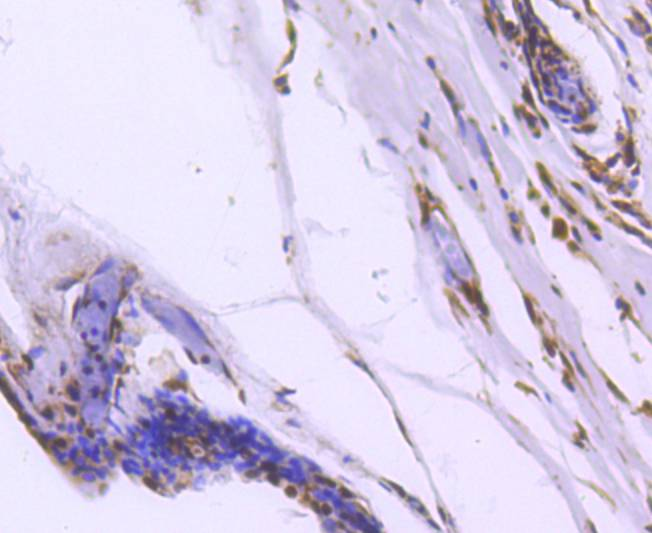 Immunohistochemical analysis of paraffin-embedded human breast carcinoma tissue using anti-FOXO1A antibody. The section was pre-treated using heat mediated antigen retrieval with Tris-EDTA buffer (pH 8.0-8.4) for 20 minutes.The tissues were blocked in 5% BSA for 30 minutes at room temperature, washed with ddH2O and PBS, and then probed with the primary antibody (ET1608-25, 1/50) for 30 minutes at room temperature. The detection was performed using an HRP conjugated compact polymer system. DAB was used as the chromogen. Tissues were counterstained with hematoxylin and mounted with DPX.