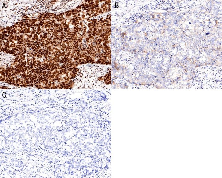 Immunohistochemical analysis of paraffin-embedded human tonsil tissue using anti-Phospho-Nrf2(S40) antibody. The section was pre-treated using heat mediated antigen retrieval with Tris-EDTA buffer (pH 8.0-8.4) for 20 minutes.The tissues were blocked in 5% BSA for 30 minutes at room temperature, washed with ddH2O and PBS, and then probed with the primary antibody (ET1608-28, 1/50) for 30 minutes at room temperature. The detection was performed using an HRP conjugated compact polymer system. DAB was used as the chromogen. Tissues were counterstained with hematoxylin and mounted with DPX.